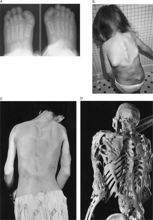 Doença rara Fibrodisplasia Ossificante Progressiva (FOP)